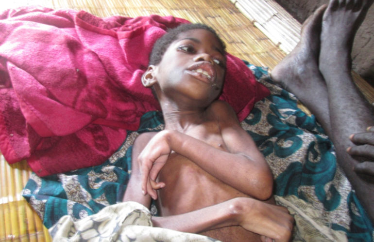 Hidden lives of children suffering from malnutrition in Malawi