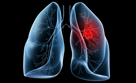 Lung cancer symptoms being ignored