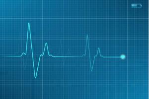 heart-monitor