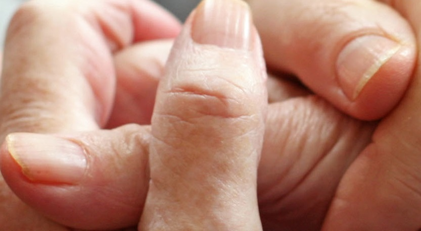 Reducing & Managing Pressure Ulcers at the End of Life