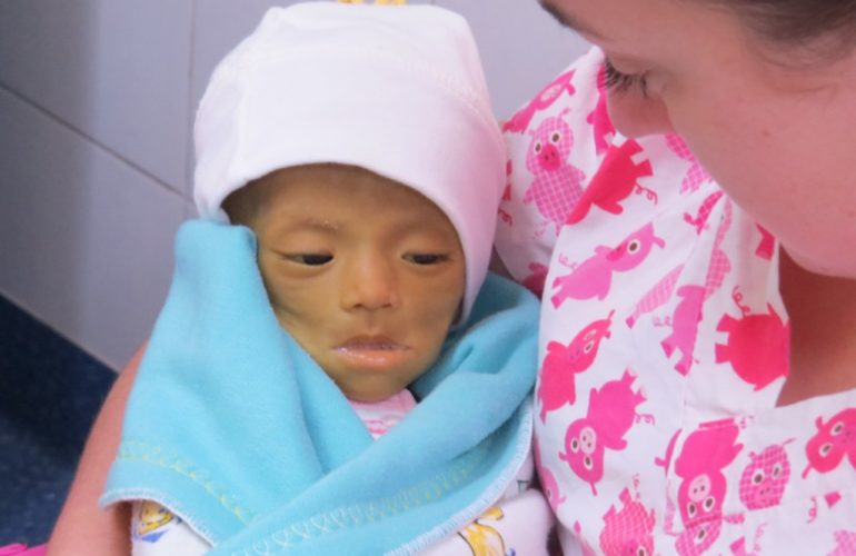 Alexa's life was very short – end of life care at the Butterfly Home in China